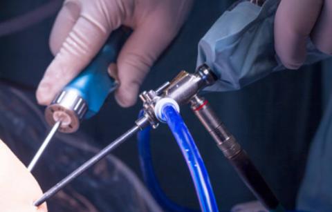 artroskopi ameliyatı