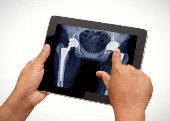 Total Kalça Protezi Ameliyatı Sonrasında Dikkat Edilmesi Gerekenler