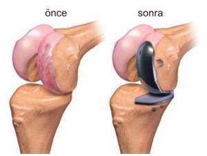 diz protezi ameliyatı