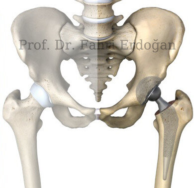 kalça protezi nedir